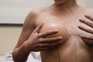 Woman preparing for oncoplastic breast surgery in Melbourne